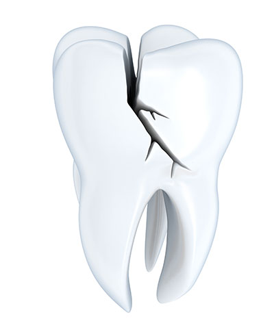 Ways of Managing a Crack in One of Your Front Teeth